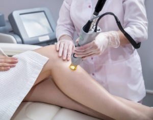 professional hair removal laser machine